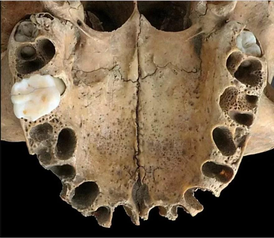 arcada dentária crânio