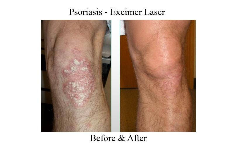 psoriasis laser treatment near me