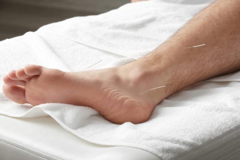 akupunktur søborg fødder behandling