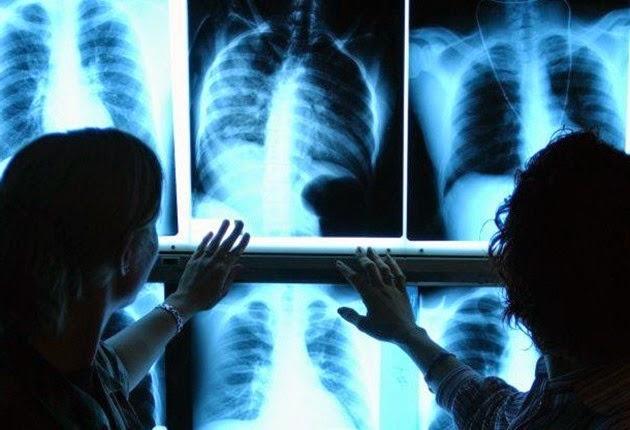 Proteção Radiológica – A interface paciente x trabalhador