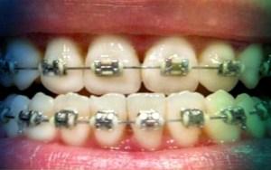 Фото Мини брекеты Мини Мастер. установка в перми в стоматологии София-дента