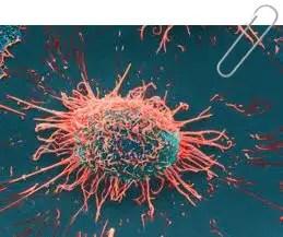 gambar kanser
