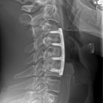 postop lateral xray cervical kyphosis
