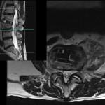 L34-minimal-stenosis