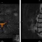 severe-stenosis-L4.5