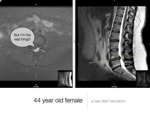 MRI scan large disc herniation