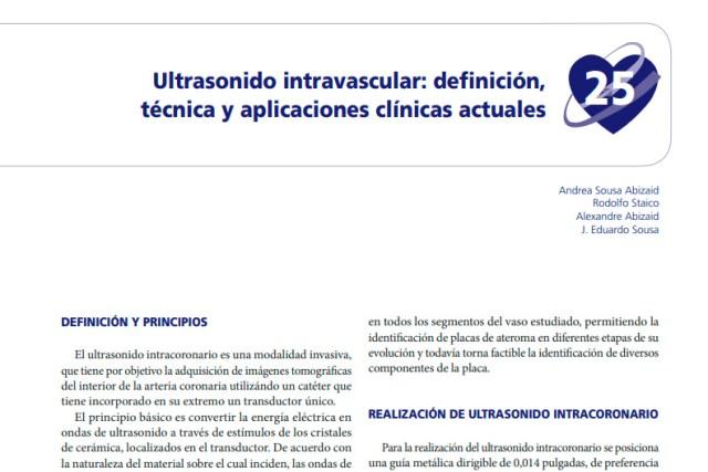 Ultrasonido Intravascular