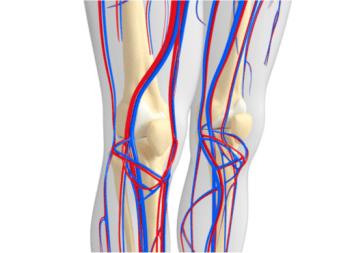 Enfermedad vascular periférica subestimada y subtratada