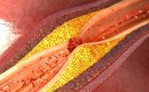Nuevas guías de dislipemia