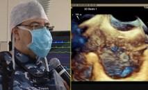 fuga paravalvular aortica