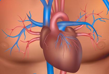 tavi estenosis aortica severa