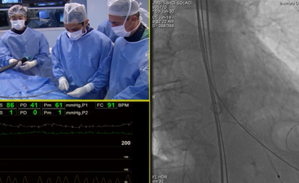 TAVR in Aortic Valve Stenosis with LOTUS