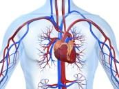 Mortalidad a un año en infarto post PCI