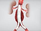endoprotesis fenestradas