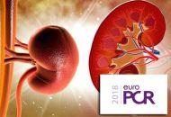 SPYRAL HTN-ON MED: La denervación renal vuelve a la vida