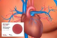 ESC 2019 | CLARIFY: Los síntomas predicen riesgo solamente en pacientes con infarto previo