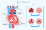 implante de la valvula aortica transcateter