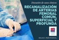 SOLACI PERIPHERAL   Recanalización de Arterias Femoral, Común, Superficial y Profunda