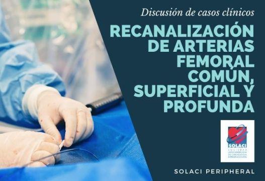 SOLACI PERIPHERAL | Recanalización de Arterias Femoral, Común, Superficial y Profunda