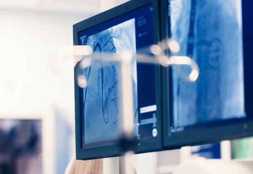 IVUS vs OCT para guiar la angioplastia ¿Cuál elegir?