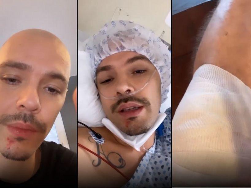 Jesse Huerta de Jesse & Joy compartió su camino al hospital tras sufrir un grave accidente