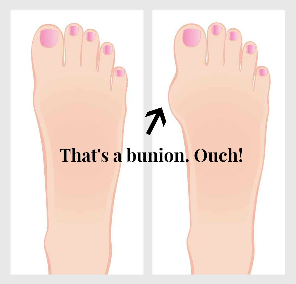 101ba375b16 Shoes that help bunions - fashionably!