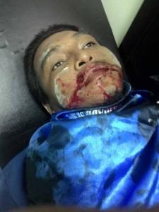Salah satu anggota KSPSI yang kembali menjadi korban kekerasan aparat, 11 Desember 2014. © Ari A / Facebook.com.