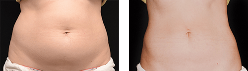 Coolsculpting Belly Before & After