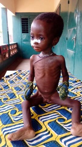bambina malnutrita