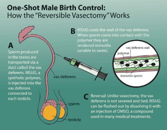 Male_Birth_Control_RISUG_Sperms_Kids_Unwanted_Children_Condoms_Medical_Reversible-Vasectomy