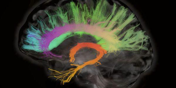 Brain_Sonar_AI_Intelligence_Neurons_Amyglada