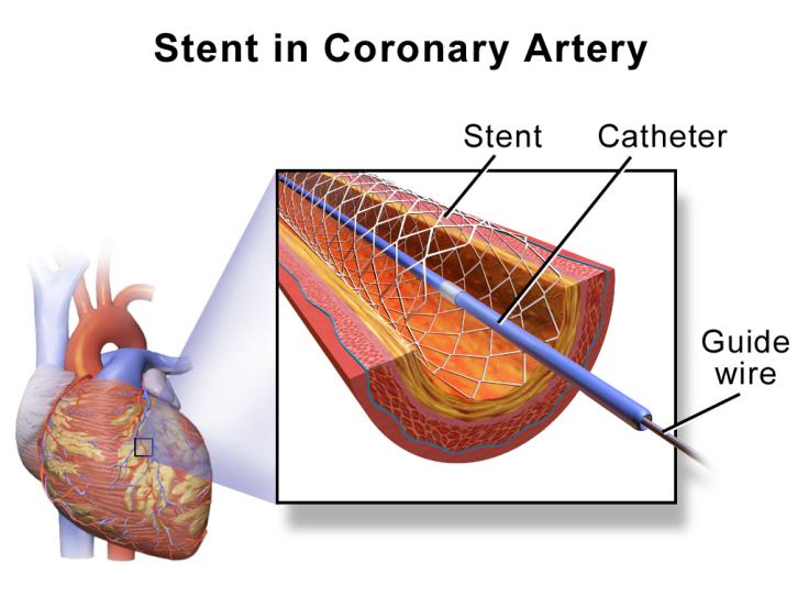 Angioplasty Stent