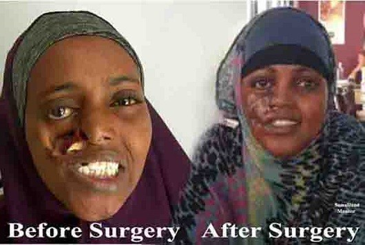 after_and_before_surgery