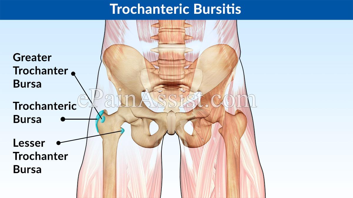 Trochanteric bursitis | Soma Orthopedics | Beverly Hills