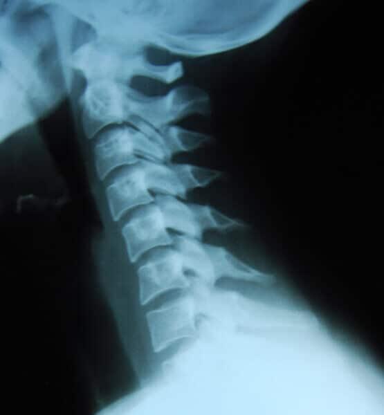 Исследования показывают, что структурные отклонения в кривизне шейного отдела позвоночника не имеют значимой связи с болью в шее.
