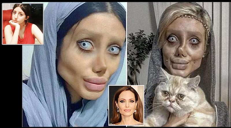 Fan underwent surgery to look like Angelina Jolie