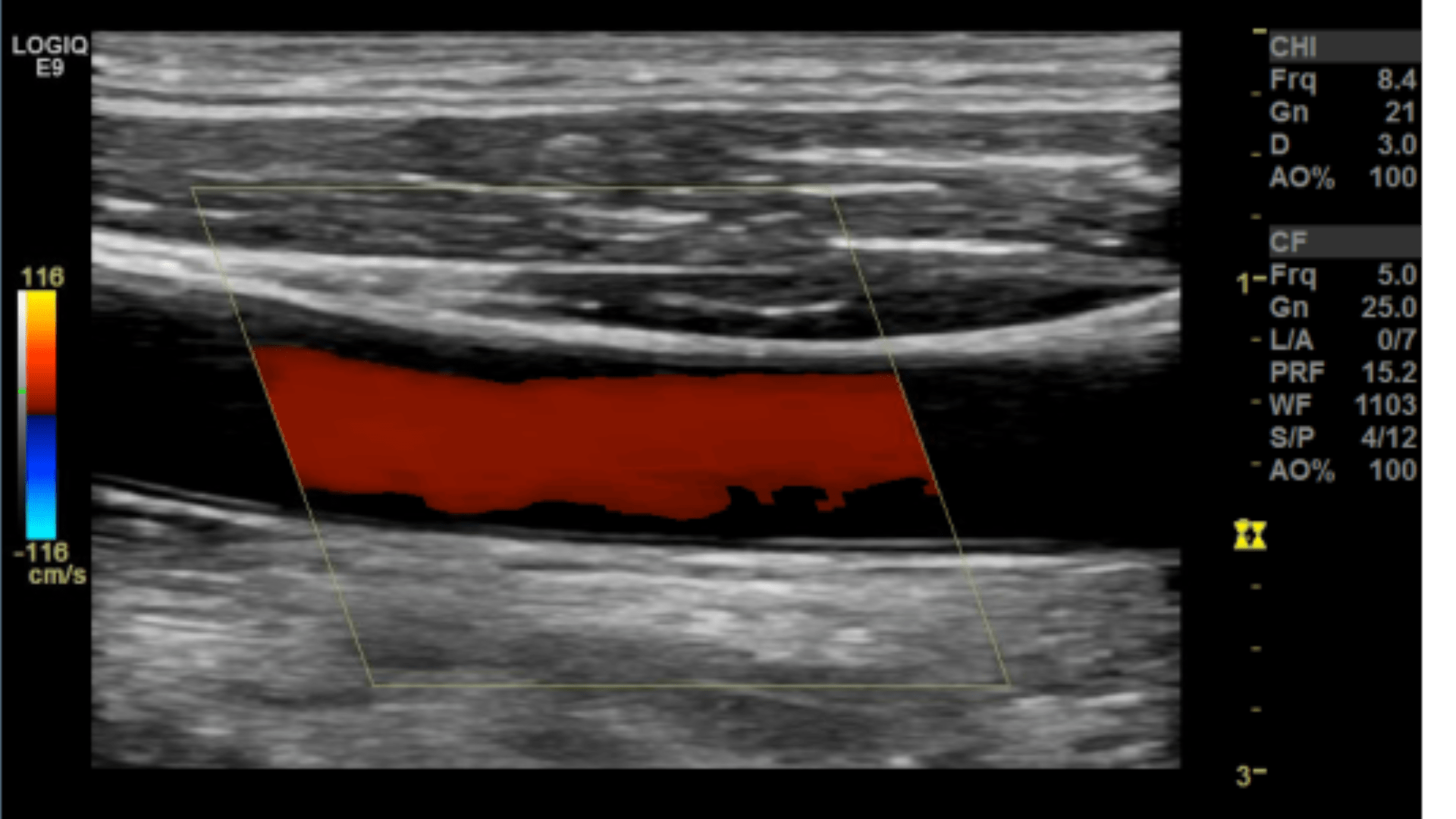 Arterial Sonography Of The Upper And Lower Extremities