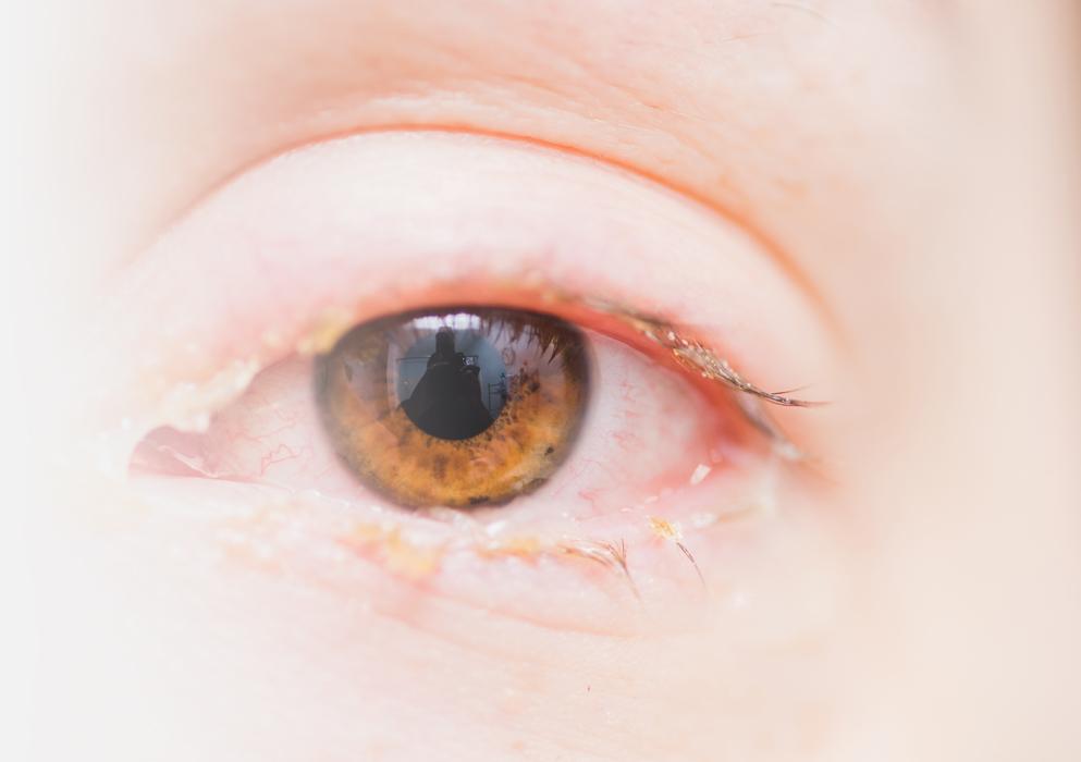 Acuicyn Antimicrobial Eyelid & Eyelash Hygiene