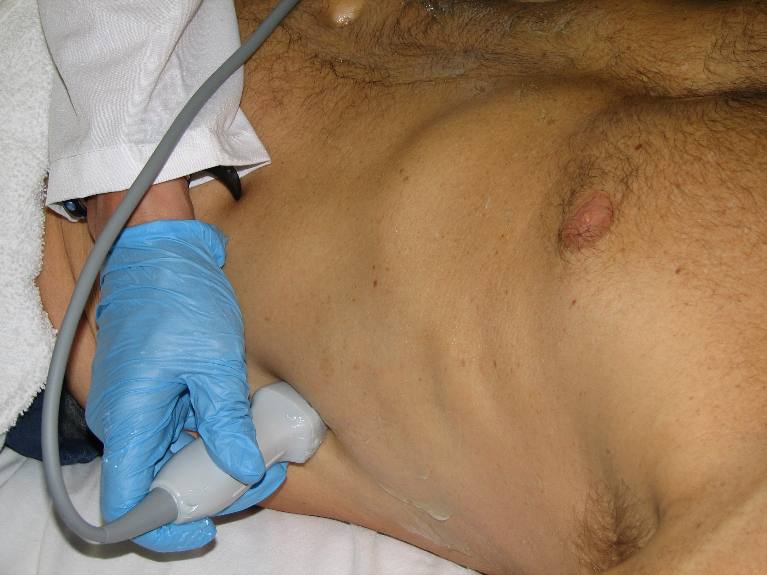 Sonostudy Lung Ultrasound By Blaivas Yup There Is A