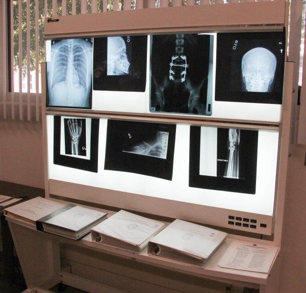 X-ray reading machine.
