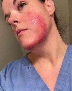 huidproblemen door het mondkapje