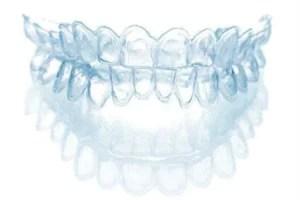 moleira clareamento dental