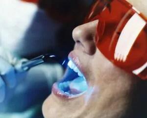técnica associada de clareamento dental