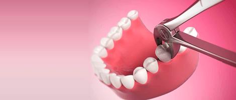 Em quais casos é preciso extrair um dente?