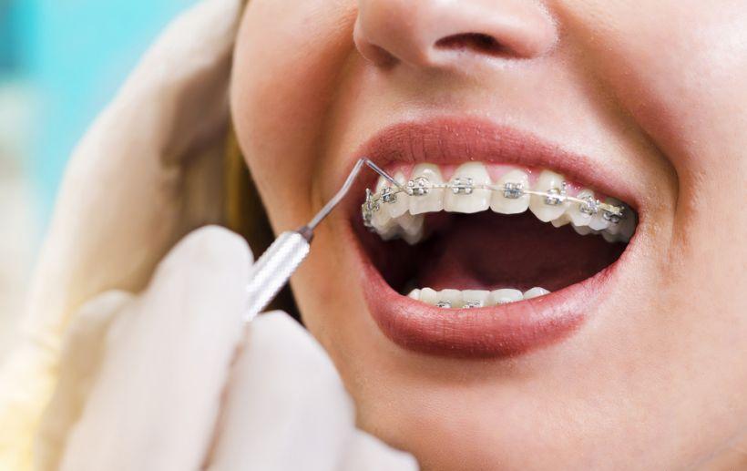 Você pretende abandonar seu tratamento odontológico? Veja os RISCOS!