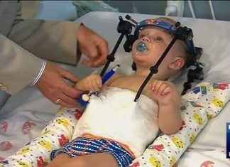 Liten gutt fikk operert hodet tilbake på kroppen etter stygg bilulykke