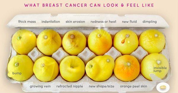 Oppdage brystkreft