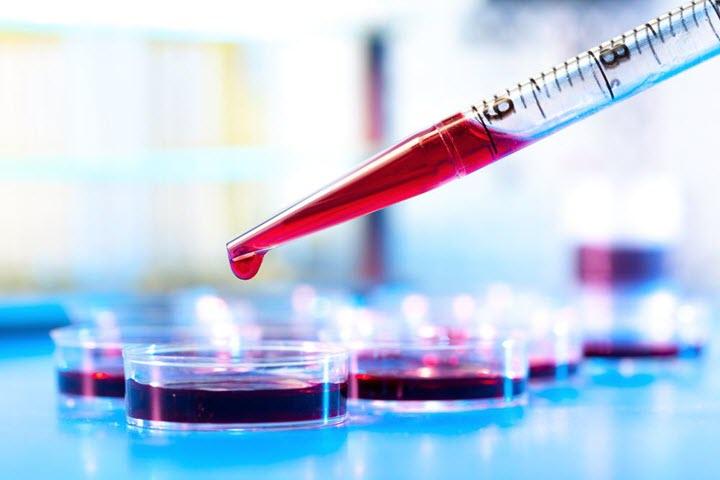 Норма эозинофилов в крови у детей, что значит повышенные или пониженные эозинофилы в крови у ребенка