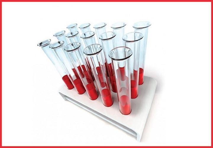 Анализ крови eos что это. Eos что это такое в анализе крови