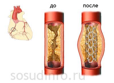 Шунтирование и стентирование что лучше. Шунтирование и стентирование сосудов сердца, в чем разница